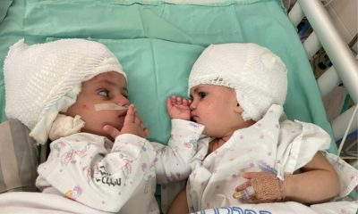 gemelle siamesi israele